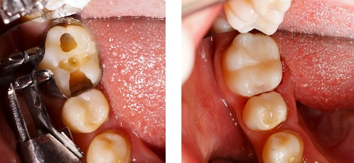 Before and After Tooth Filling Restoration